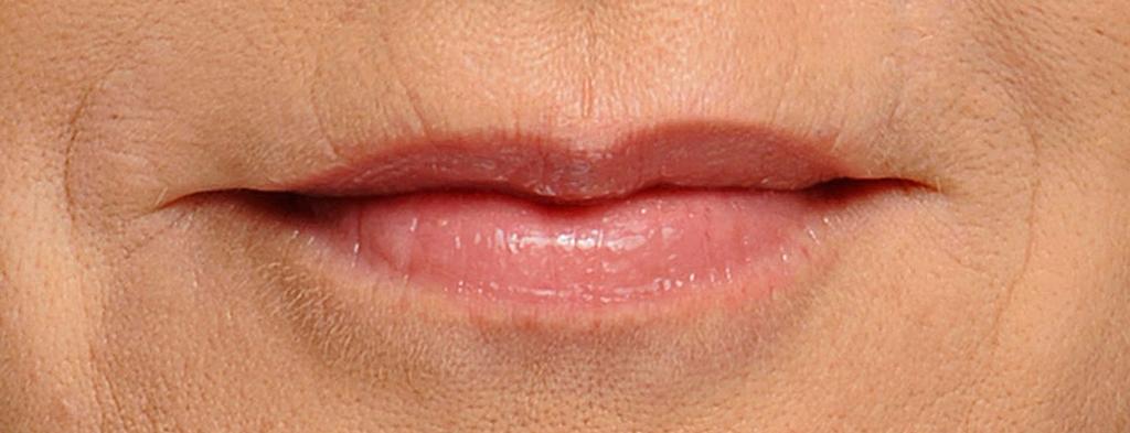 Lip lines/smoker's lines